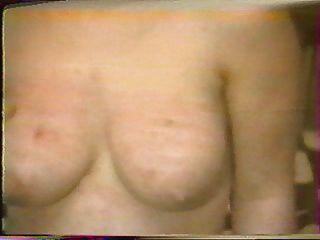 جلد الثدي كريستين