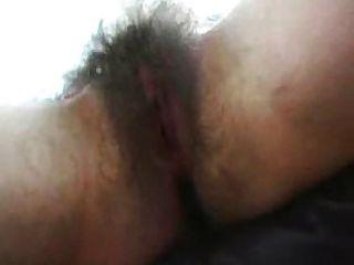 جمرة شعر