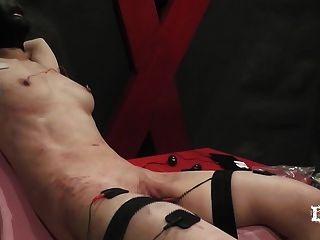 التعذيب الكهربائي