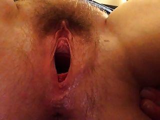 كونغ الولادة وتثاءب العضو التناسلي النسوي